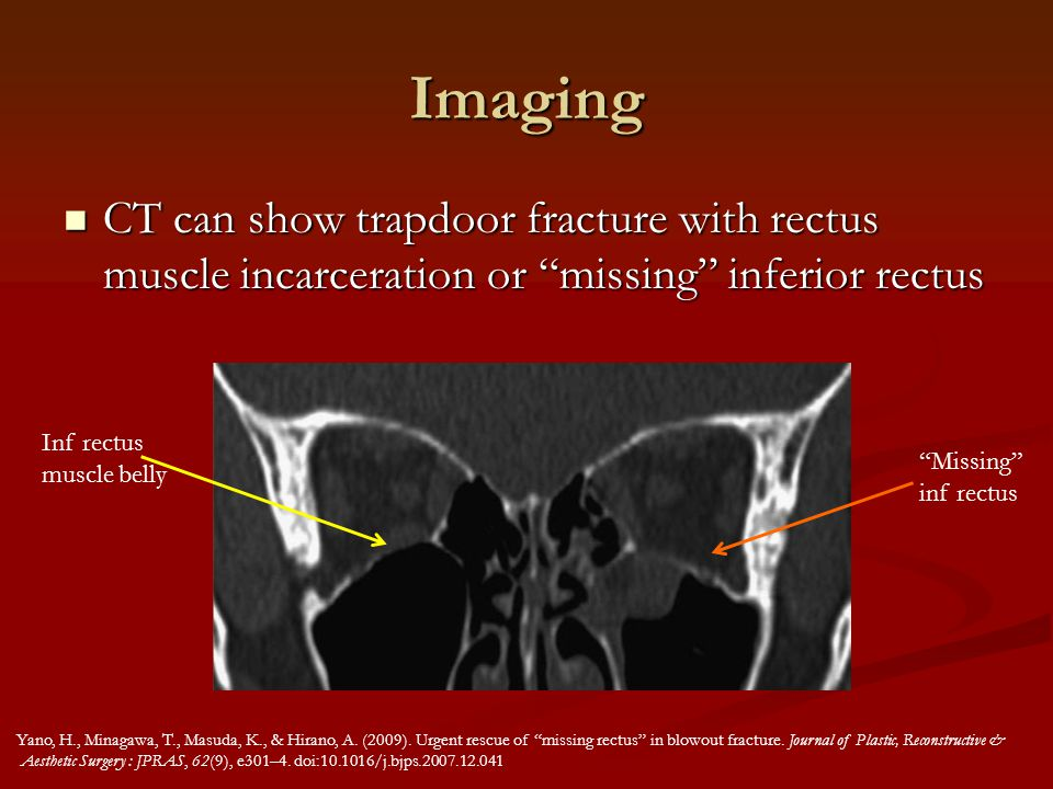 Imaging CT can show trapdoor fracture with rectus muscle incarceration or missing inferior rectus.