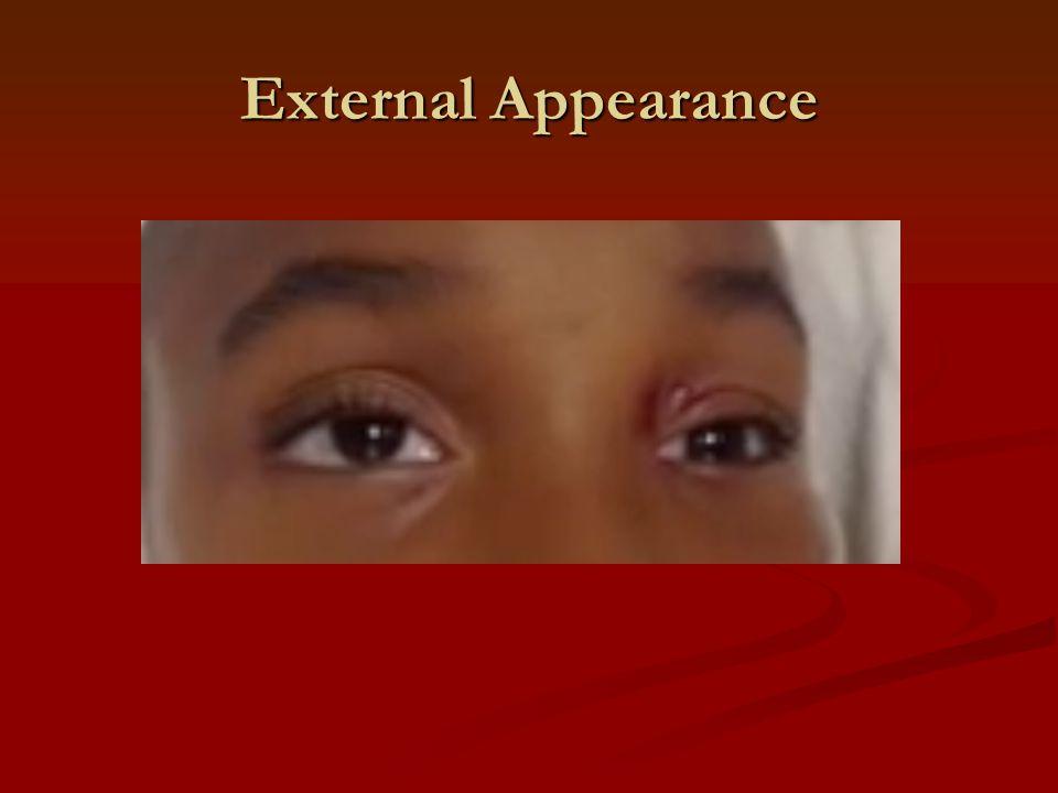 External Appearance