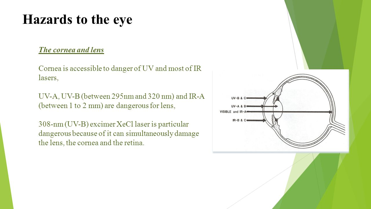 Hazards to the eye The cornea and lens