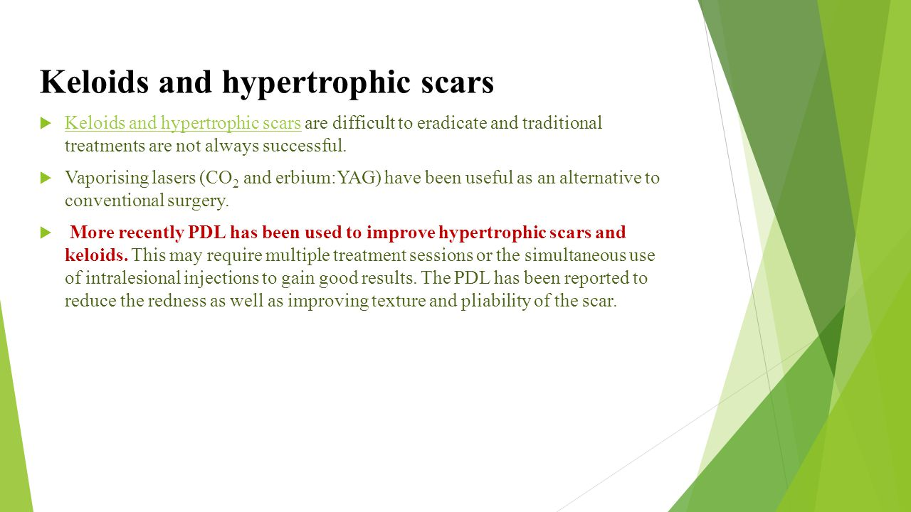 Keloids and hypertrophic scars
