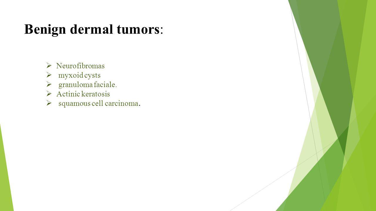 Benign dermal tumors: Neurofibromas myxoid cysts granuloma faciale.