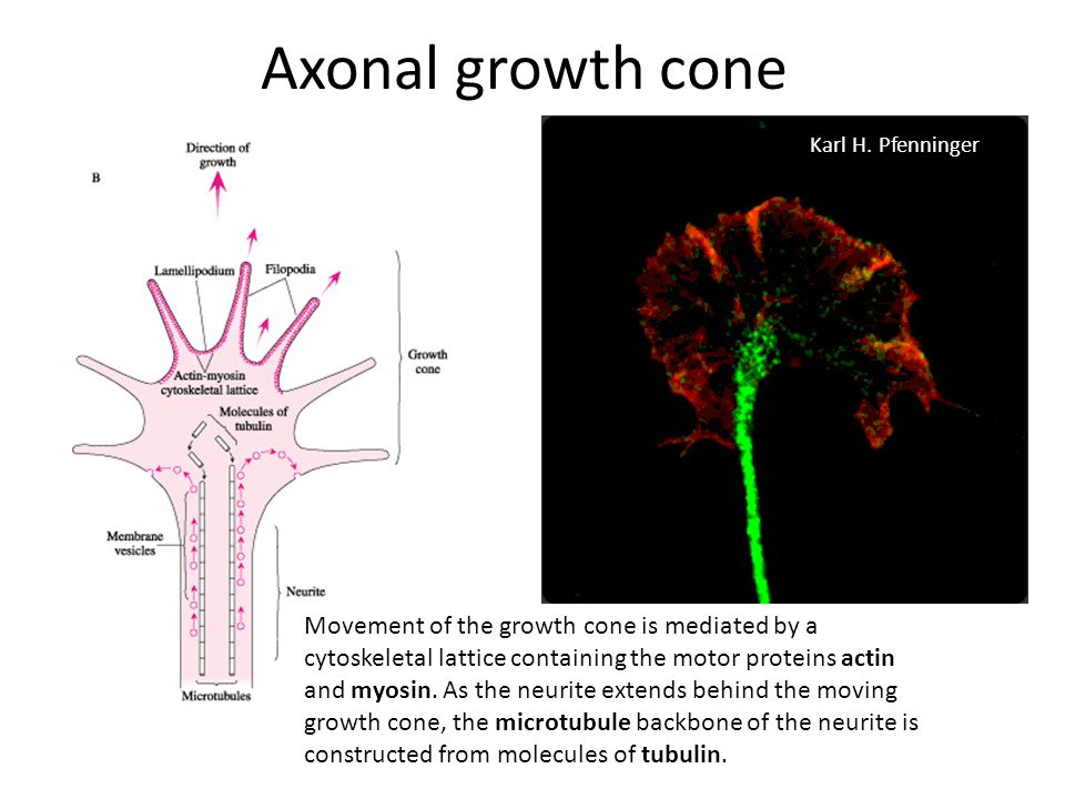 Axonal growth cone Karl H. Pfenninger.