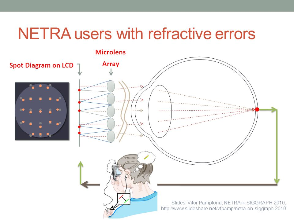 NETRA users with refractive errors