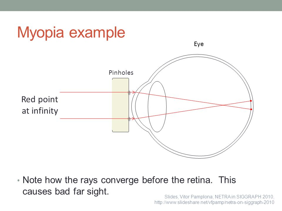 Myopia example Red point at infinity