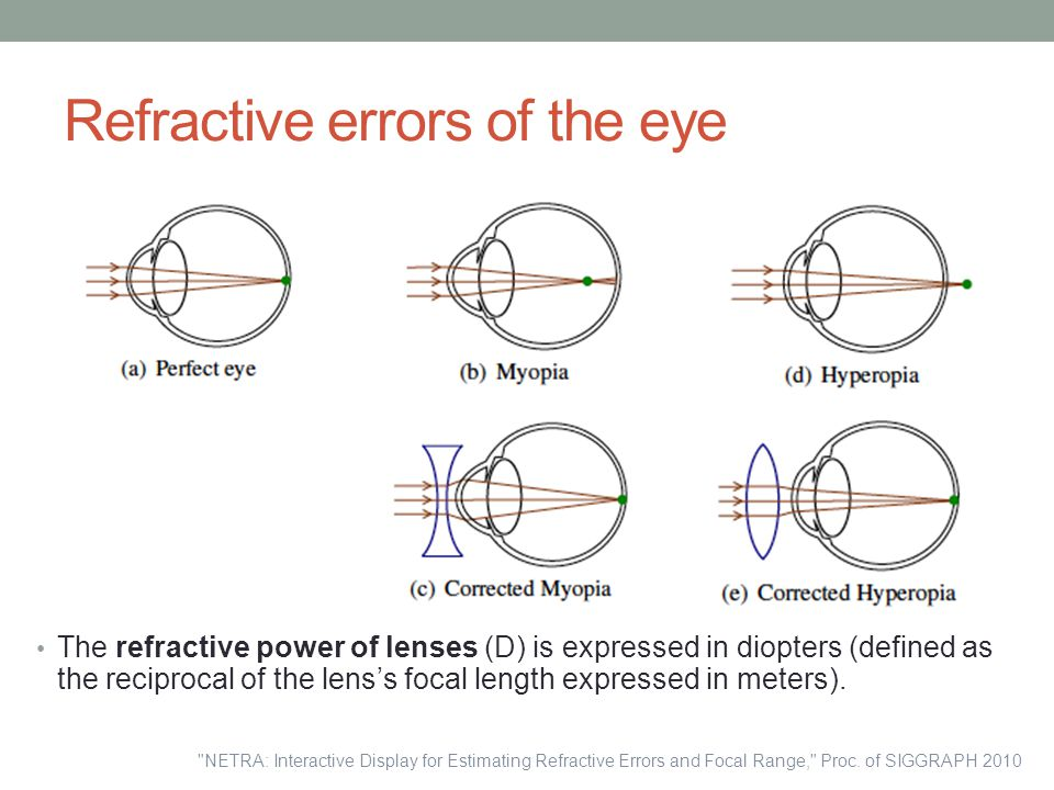 Refractive errors of the eye