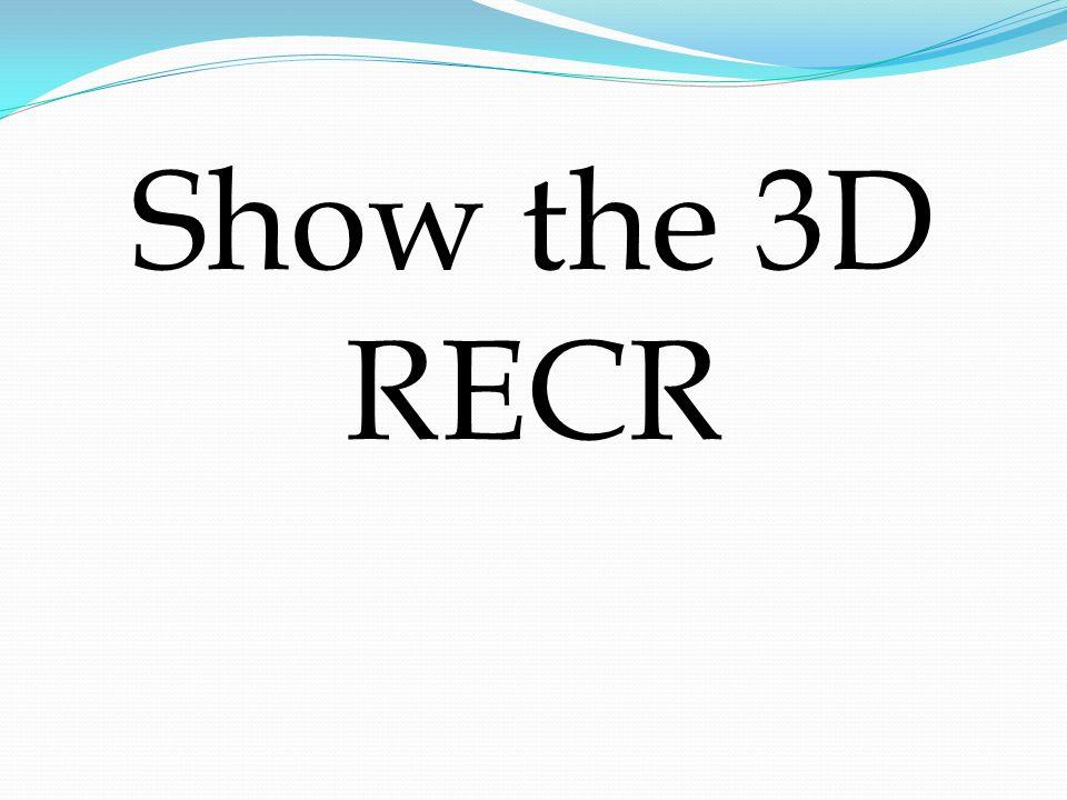 Show the 3D RECR