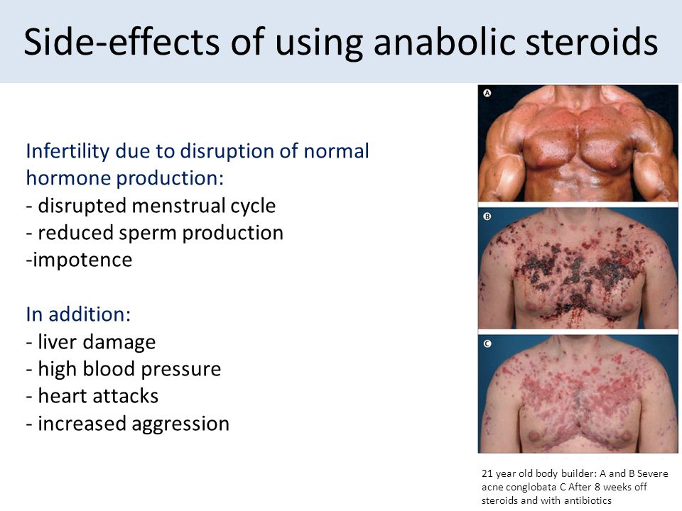 the terrible side effects of using anabolic steroids by athletes Improper use of anabolic steroids can have unhealthy side effects steroid use by college athletes has increased as well side effects of anabolic steroid use.