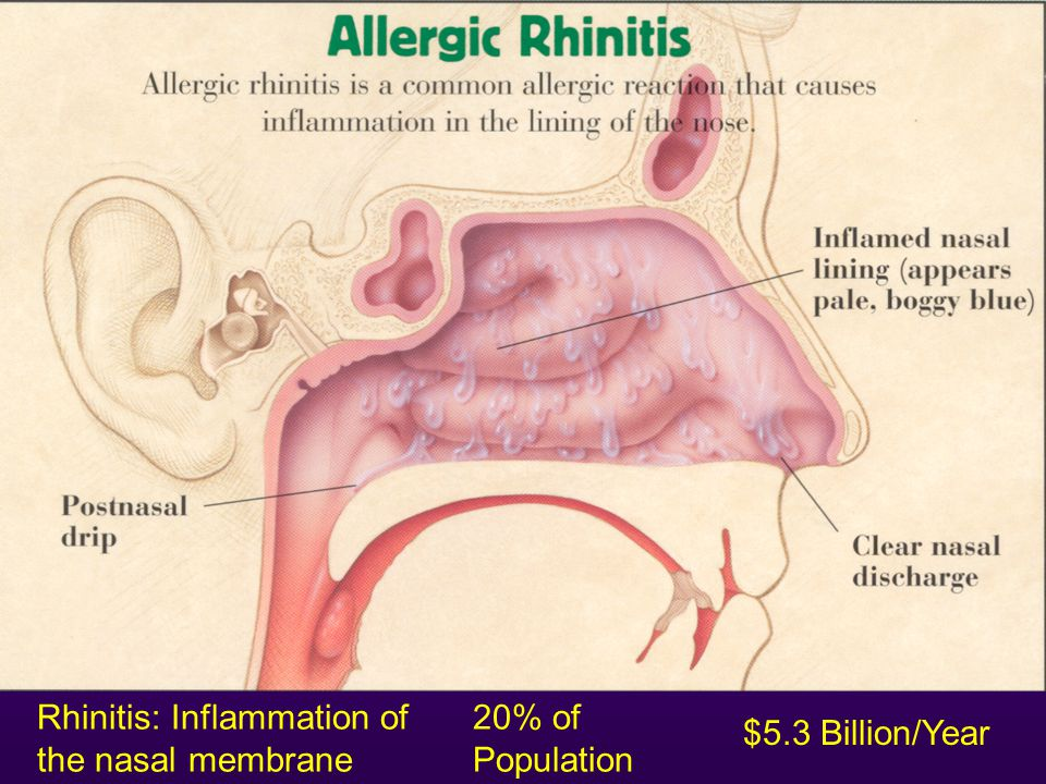 Rhinitis: Inflammation of the nasal membrane 20% of Population