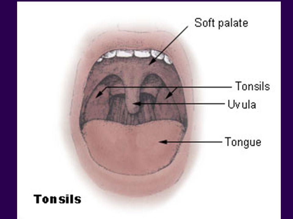 http://en.wikipedia.org/wiki/Image:Tonsils_diagram.jpg