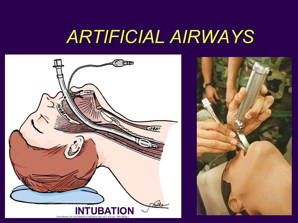 ARTIFICIAL AIRWAYS INTUBATION