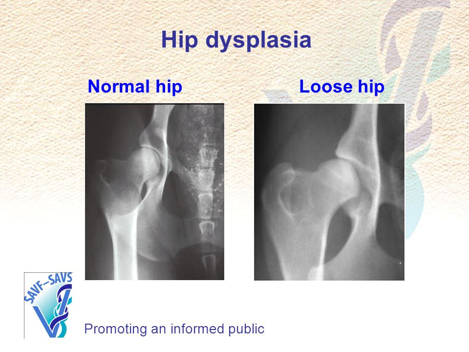 Hip dysplasia Normal hip Loose hip