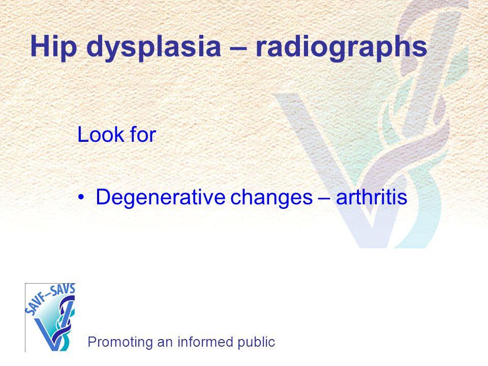Hip dysplasia – radiographs