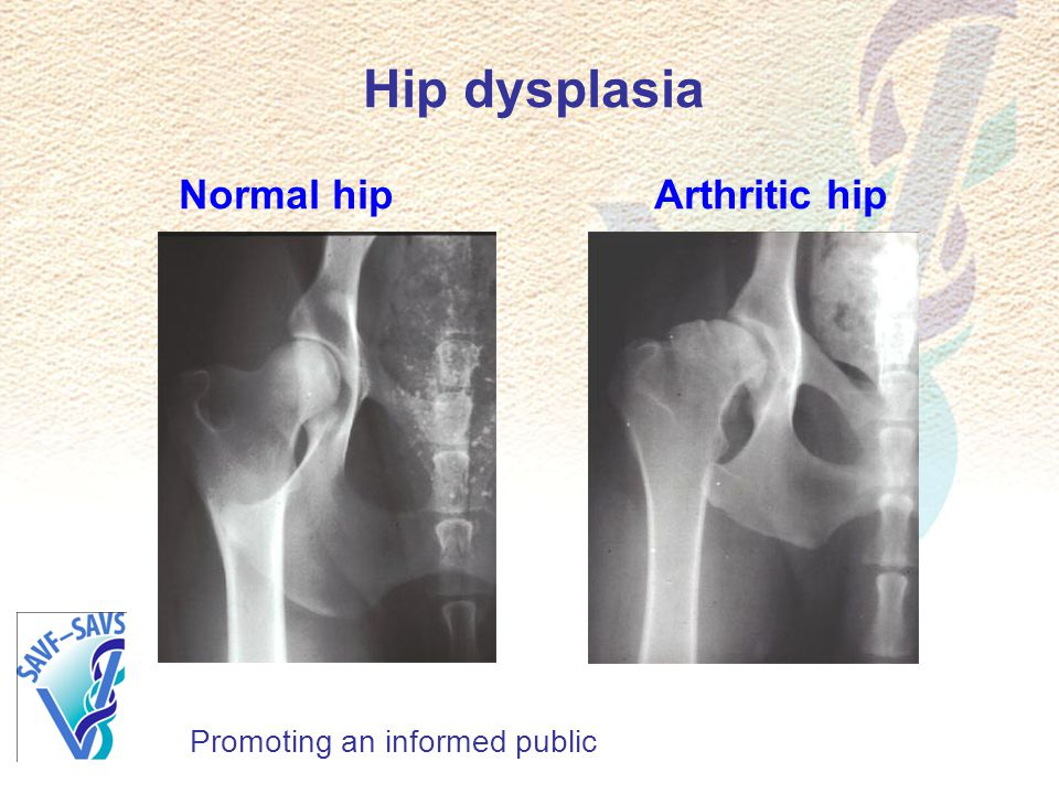 Hip dysplasia Normal hip Arthritic hip