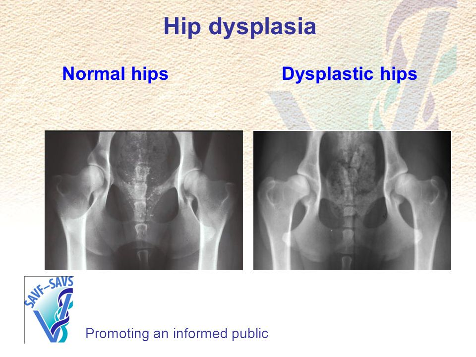 Hip dysplasia Normal hips Dysplastic hips