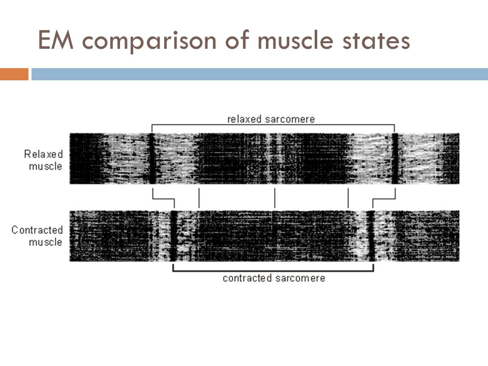 EM comparison of muscle states