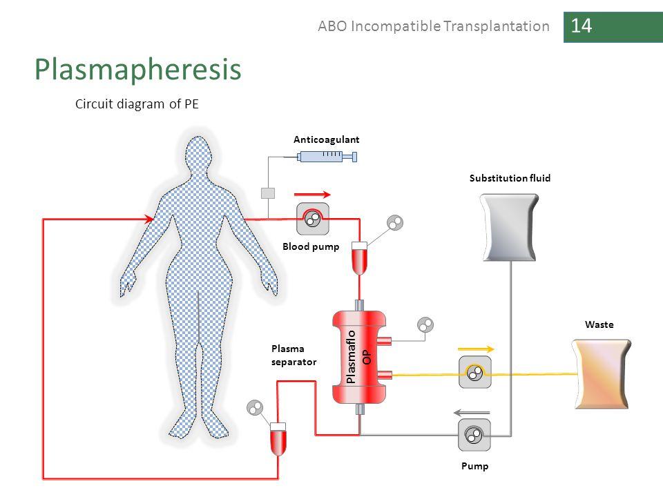 Plasmapheresis Circuit diagram of PE Plasmaflo OP Anticoagulant