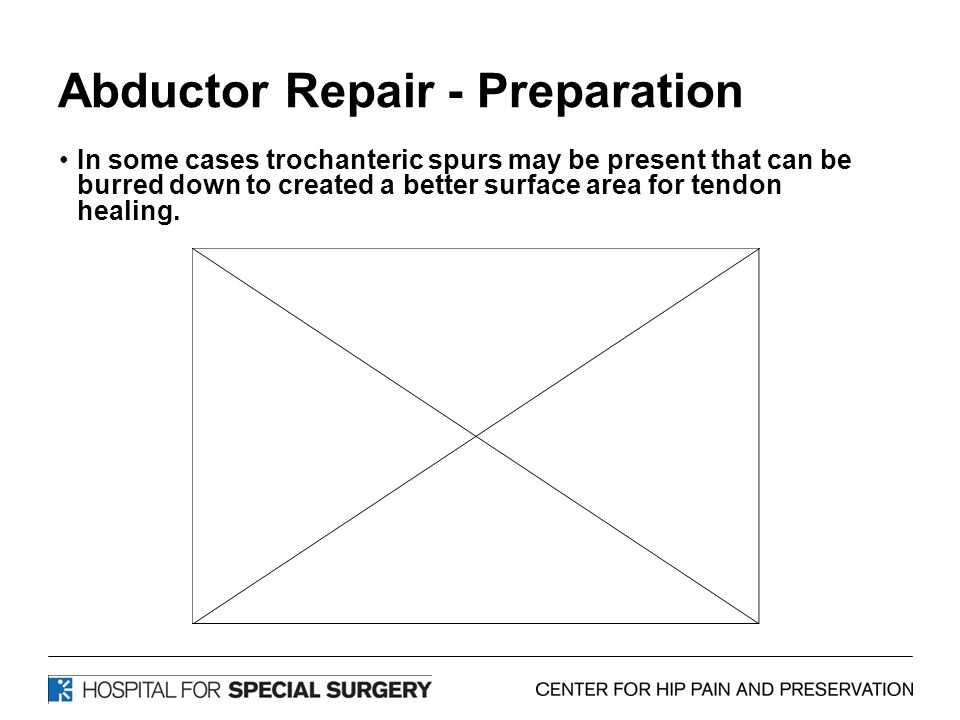 Abductor Repair - Preparation