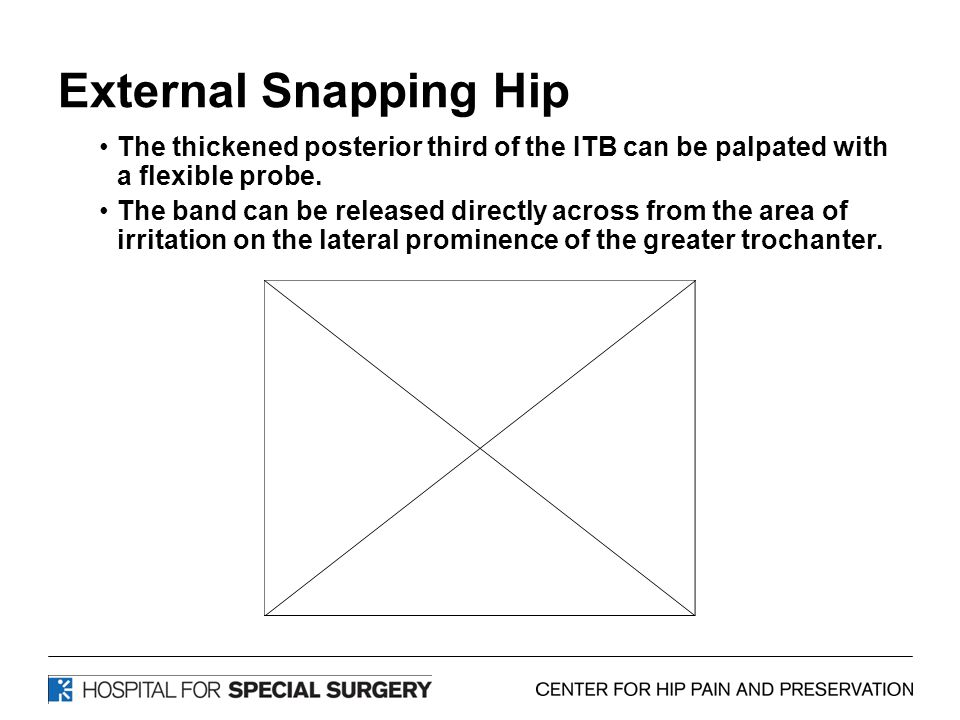External Snapping Hip The thickened posterior third of the ITB can be palpated with a flexible probe.