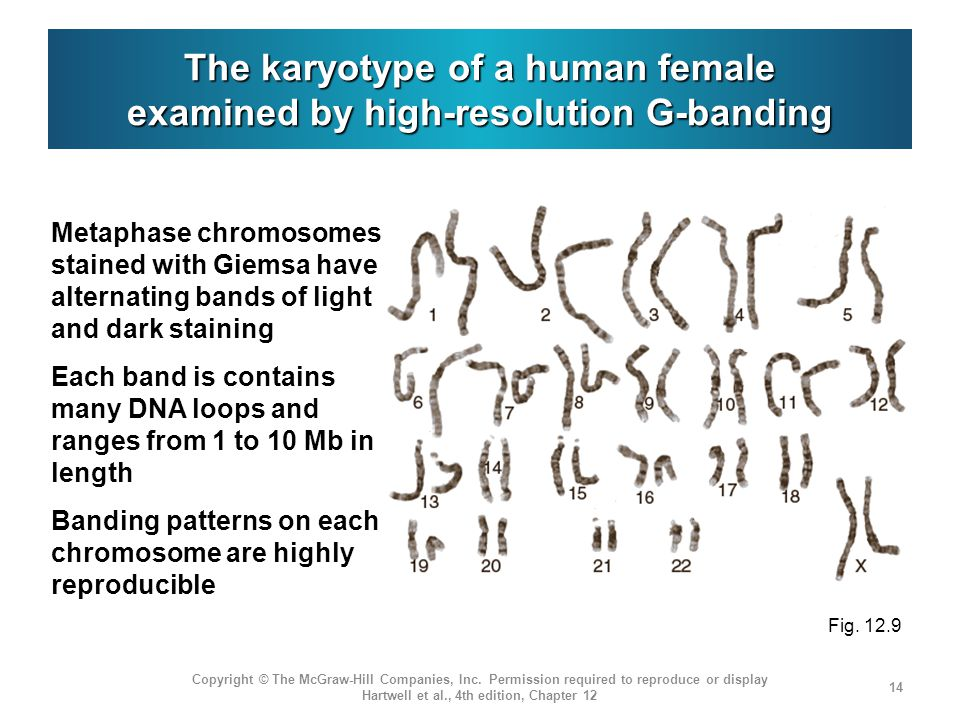 The karyotype of a human female examined by high-resolution G-banding