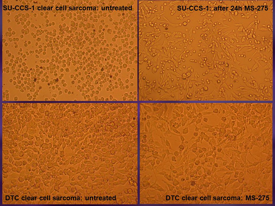 SU-CCS-1 clear cell sarcoma: untreated SU-CCS-1: after 24h MS-275