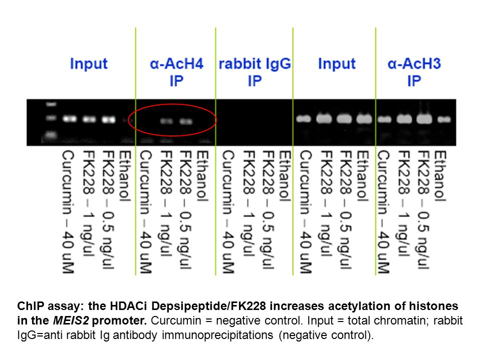 ChIP assay: the HDACi Depsipeptide/FK228 increases acetylation of histones in the MEIS2 promoter.