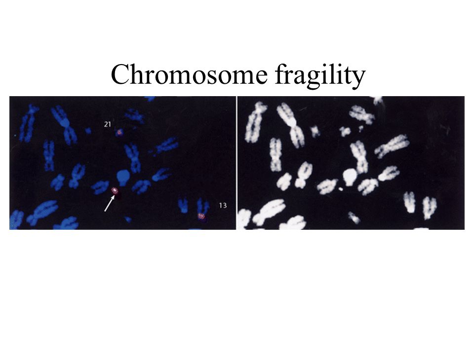 Chromosome fragility