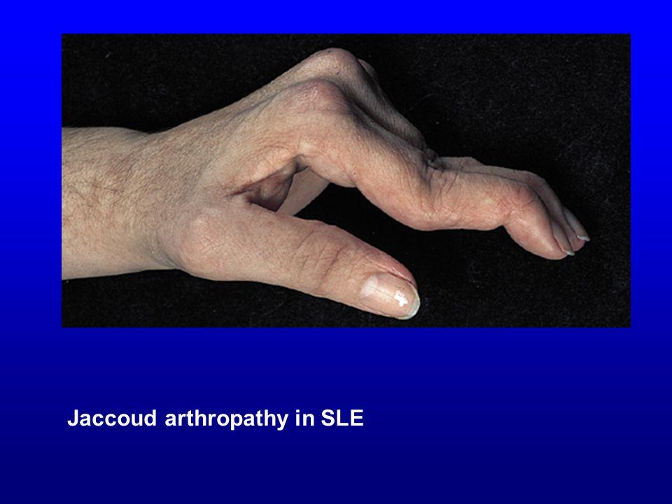 Jaccoud arthropathy in SLE