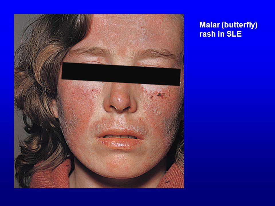Malar (butterfly) rash in SLE