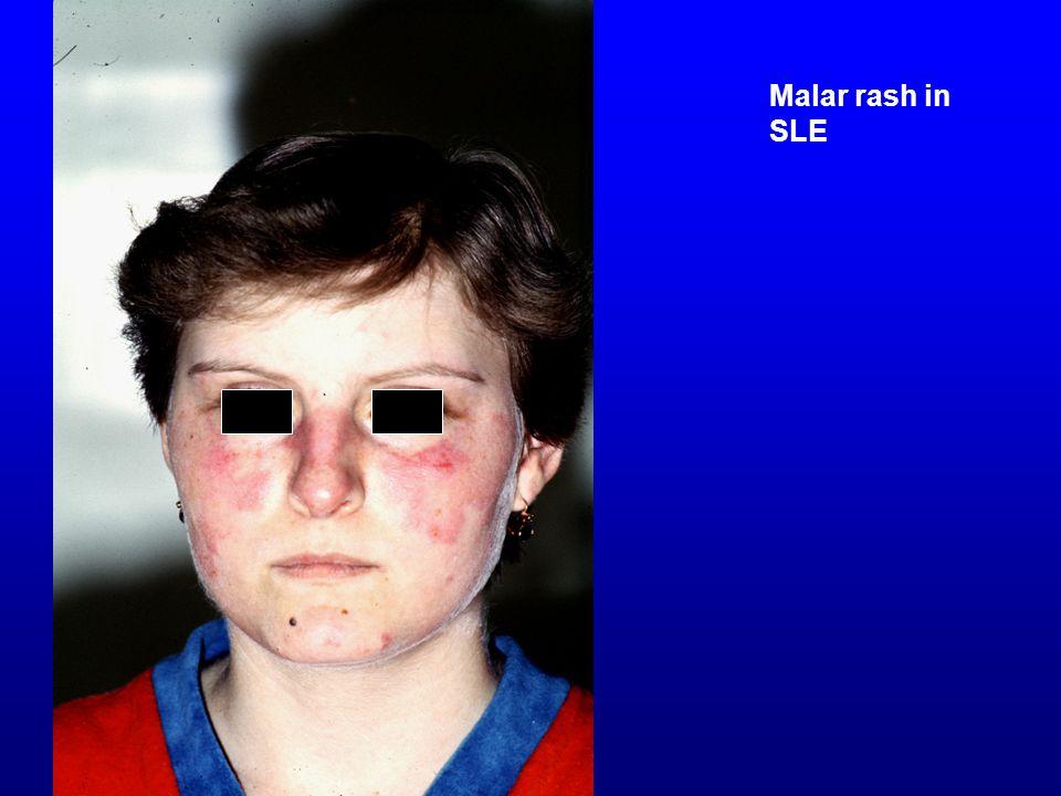 Malar rash in SLE Malar rash in SLE