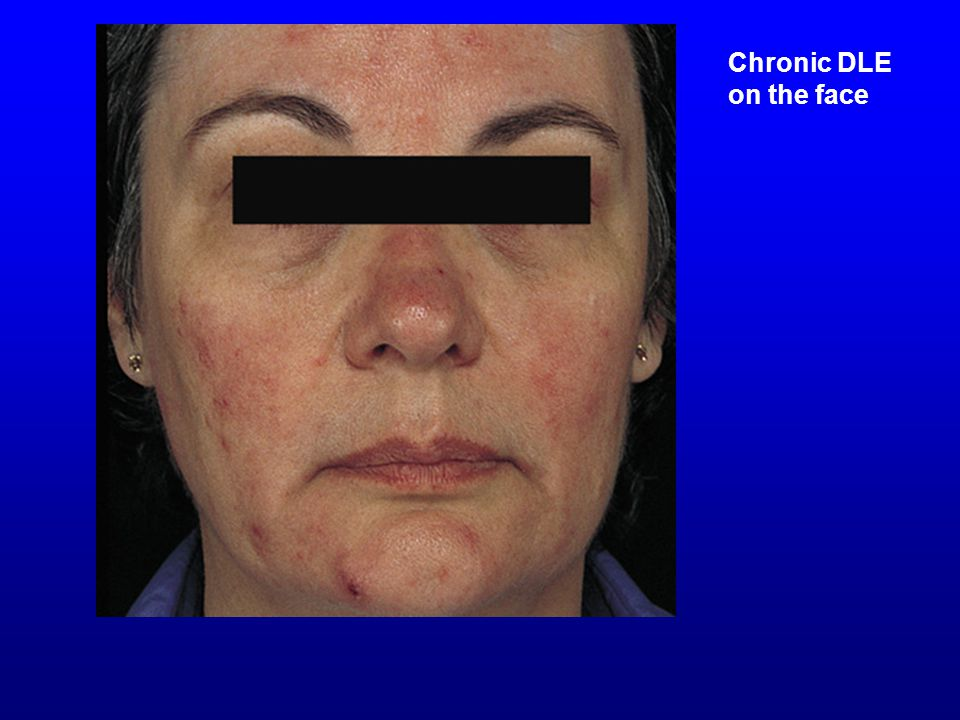 Chronic DLE on the face Chronic DLE on the face