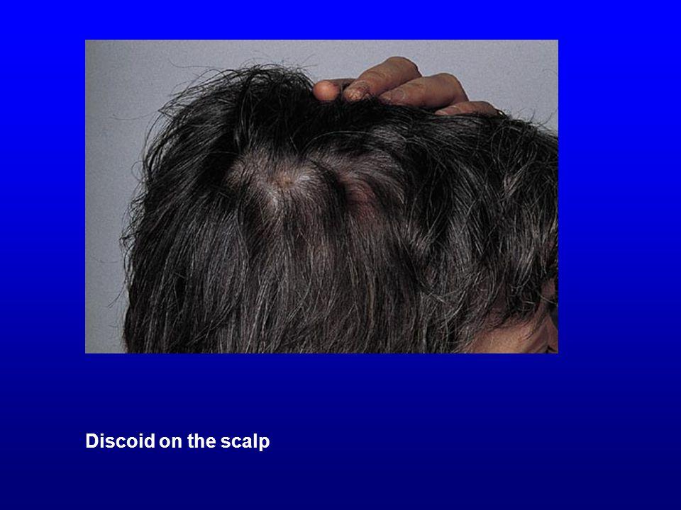 Discoid on the scalp Discoid on the scalp