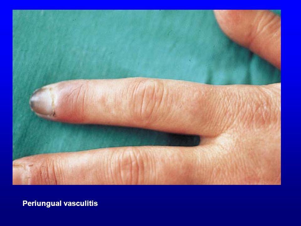 Perinugual vasculitis