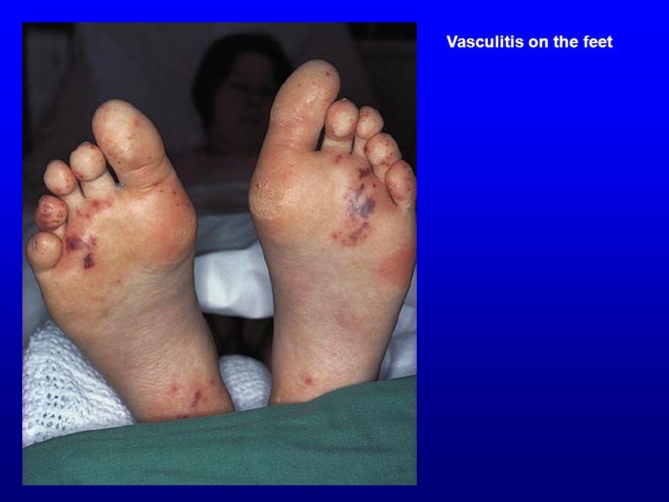 Vasculitis on the feet Vasculitis on the feet