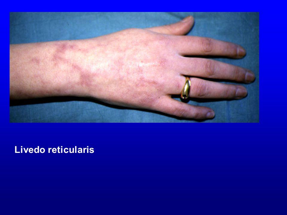 Livedo reticularis Livedo reticularis