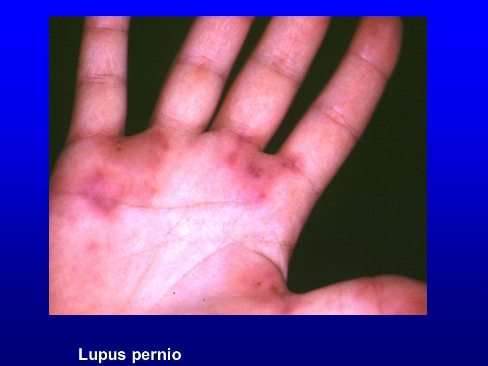 Lupus pernio Lupus pernio