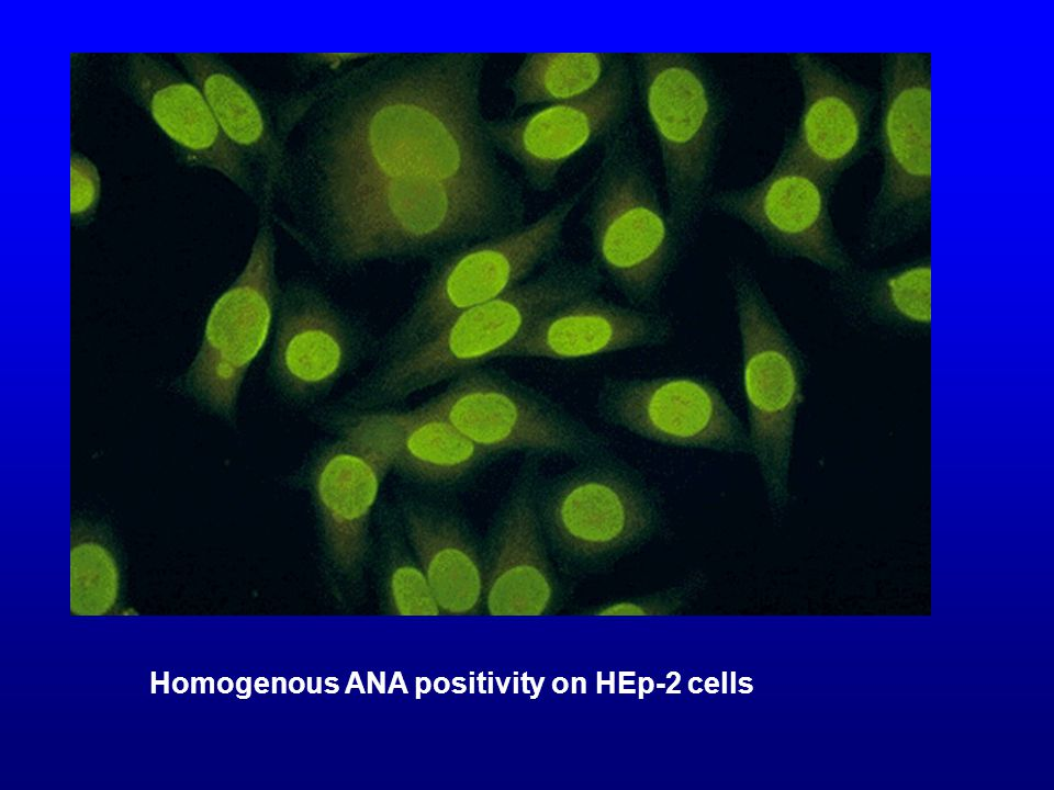 Homogenous ANA positivity on HEp-2 cells