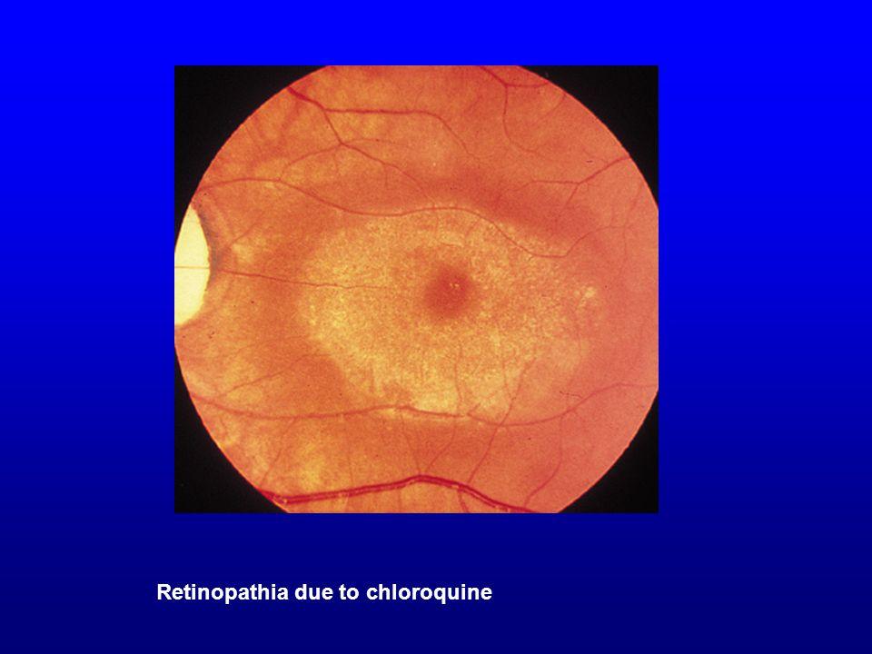 Retinopathia due to chloroquine