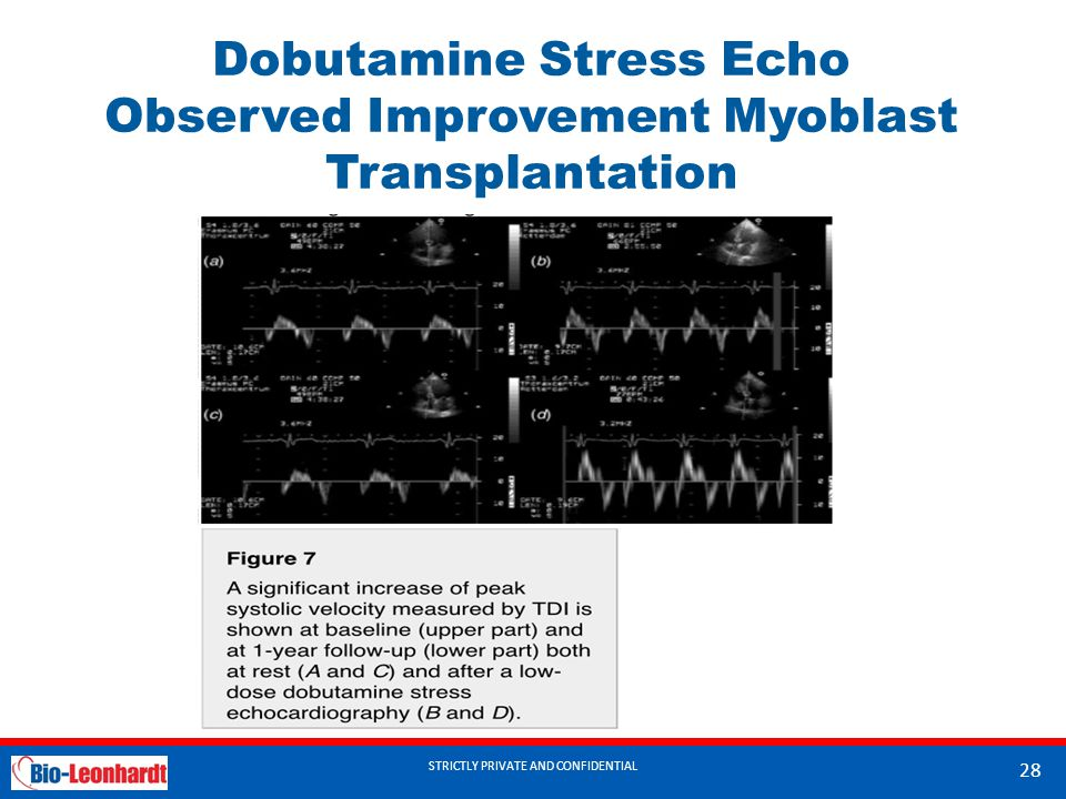 Dobutamine Stress Echo Observed Improvement Myoblast Transplantation