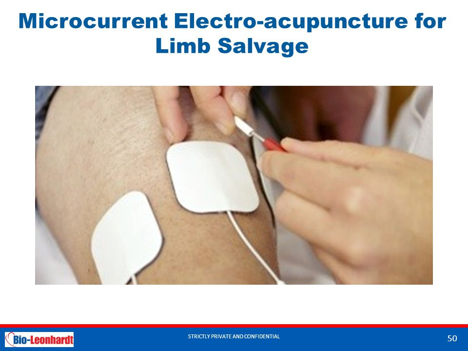 Microcurrent Electro-acupuncture for Limb Salvage