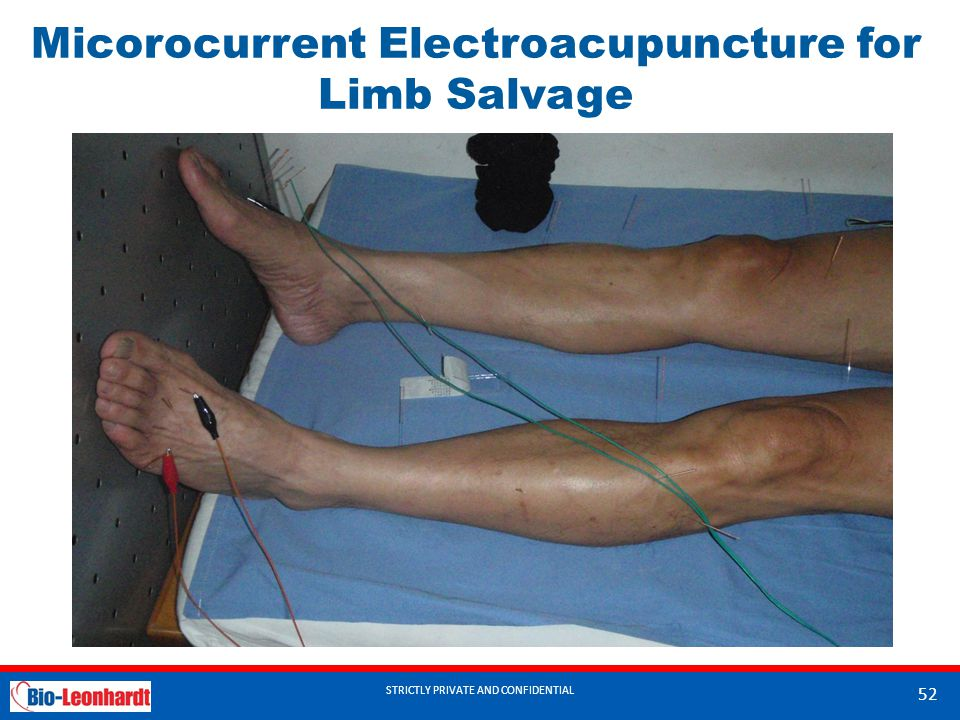 Micorocurrent Electroacupuncture for Limb Salvage