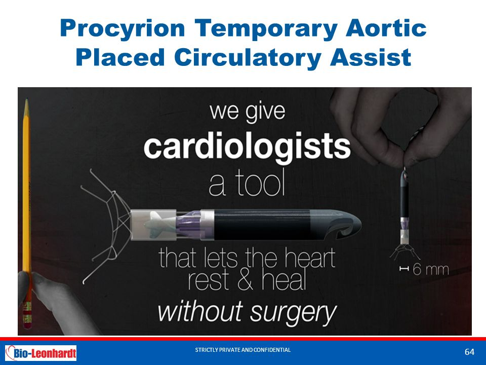 Procyrion Temporary Aortic Placed Circulatory Assist