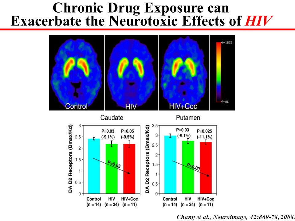 Chronic Drug Exposure can Exacerbate the Neurotoxic Effects of HIV