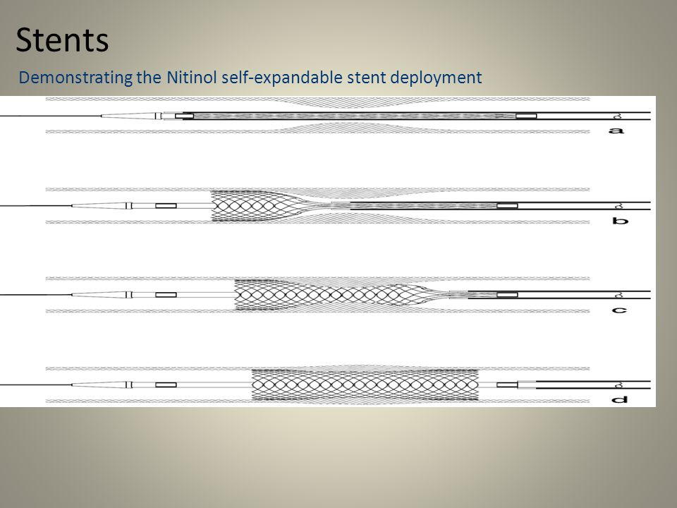 Stents Demonstrating the Nitinol self-expandable stent deployment