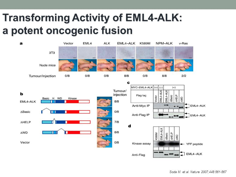 Transforming Activity of EML4-ALK: a potent oncogenic fusion