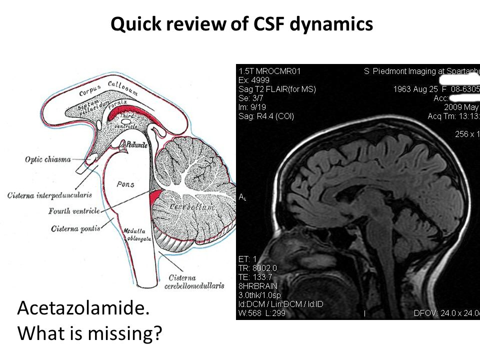 Quick review of CSF dynamics
