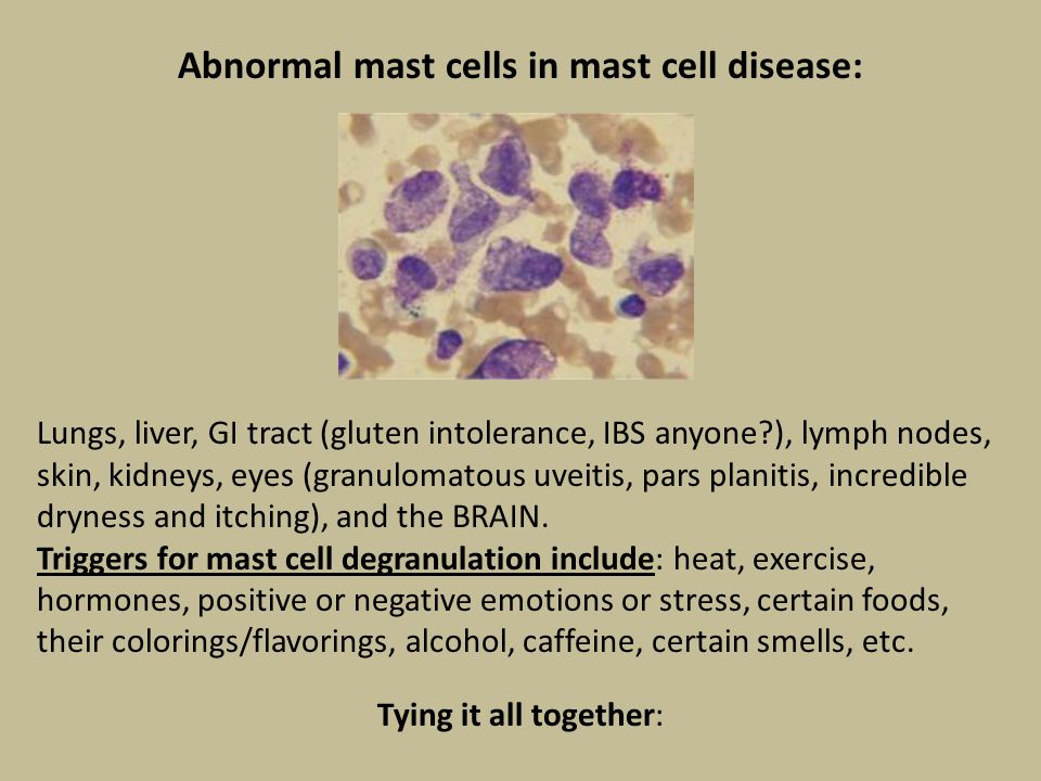 Abnormal mast cells in mast cell disease: