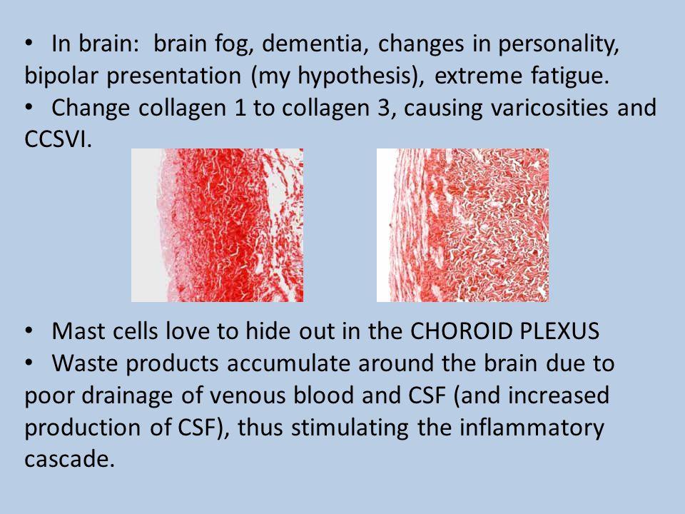 Change collagen 1 to collagen 3, causing varicosities and CCSVI.