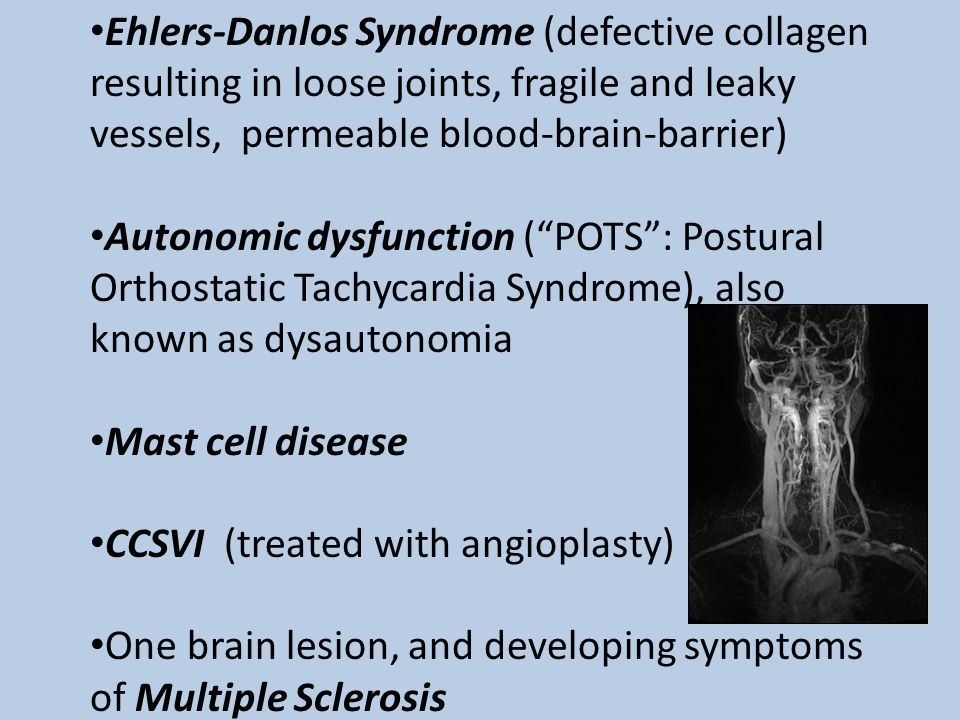 Ehlers-Danlos Syndrome (defective collagen resulting in loose joints, fragile and leaky vessels, permeable blood-brain-barrier)