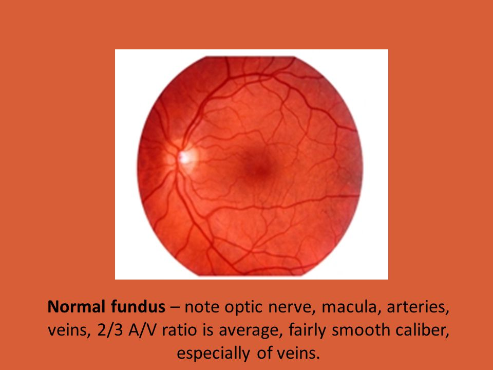 Normal fundus – note optic nerve, macula, arteries, veins, 2/3 A/V ratio is average, fairly smooth caliber, especially of veins.