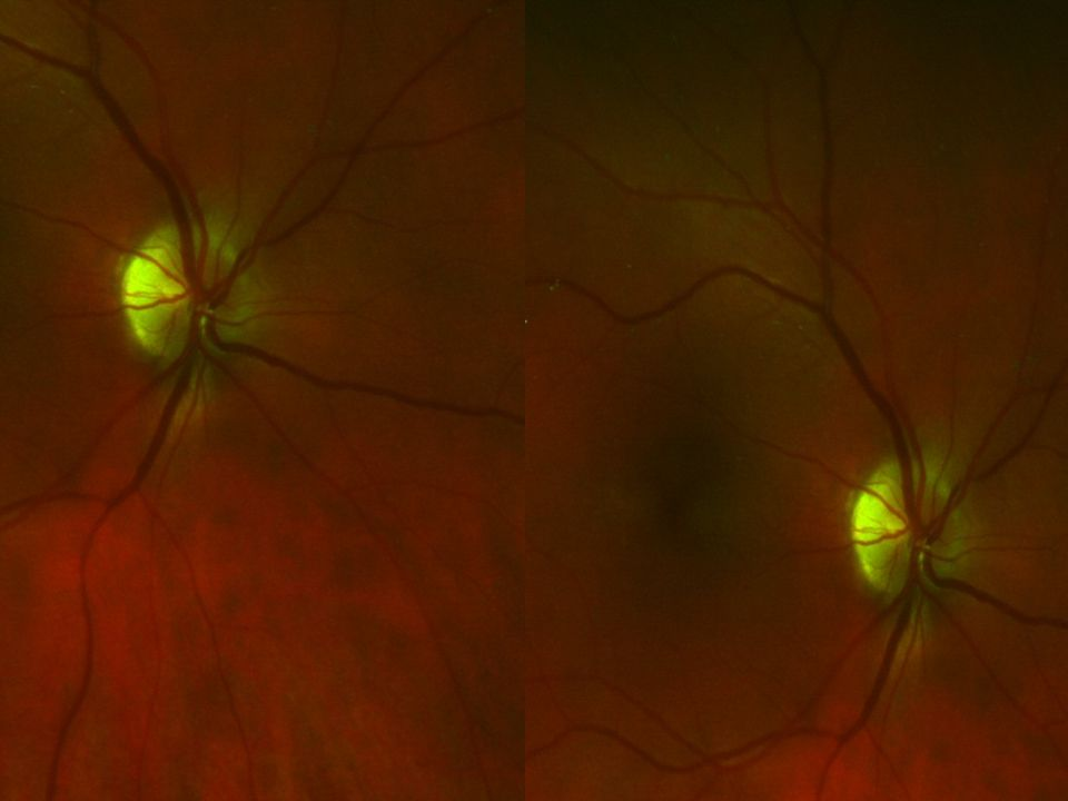 Female, age 47, Same eye; note venous irregularity in caliber, stenosis, and see how narrow arteries are.